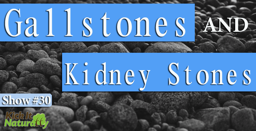30--Gallstones-and-Kidney-S